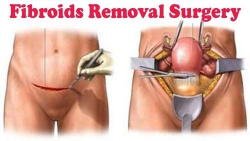 Myomectomy (Fibroids) Surgery | Treatments | Best Surgeon in Kota
